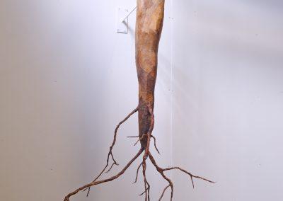 Transplant - Detail
